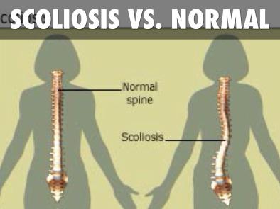scoliosis-1465284801